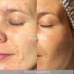 acné,huidverbetering, micro-needling, puisten, zuiverende behandeling