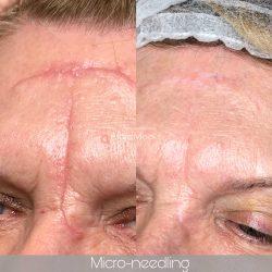 litteken, micro-needling, huidverbetering, gezichtsbehandeling, schoonheidsspecialiste, bindweefsel massage