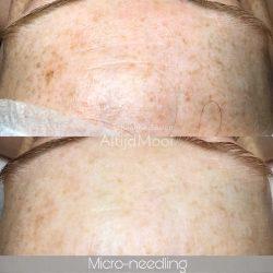 pigment, huidverjonging, peeling, huidverbetering, lijntjes, rimpels, micro-needling