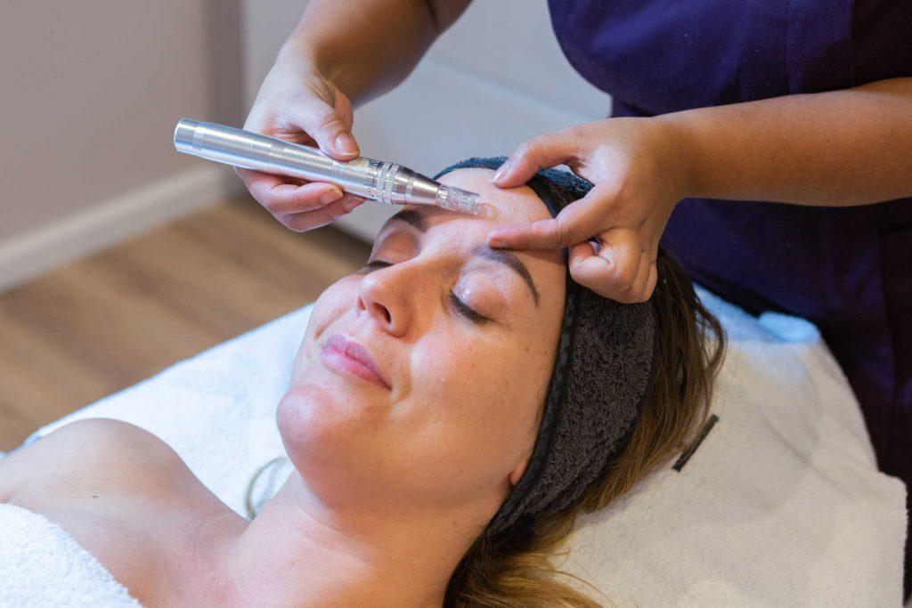 micro-needling,schoonheidssalon,schoonheidsspecialiste,huidverbetering,acne,rimpers,grauwehuid